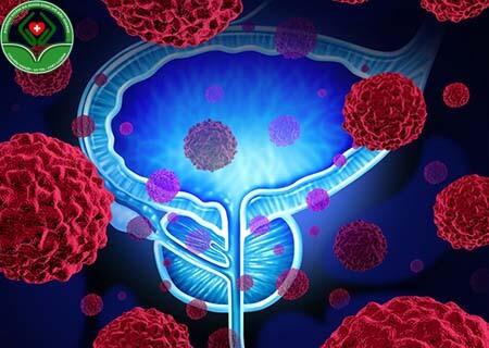 U nang tuyến tiền liệt có tác hại gì?