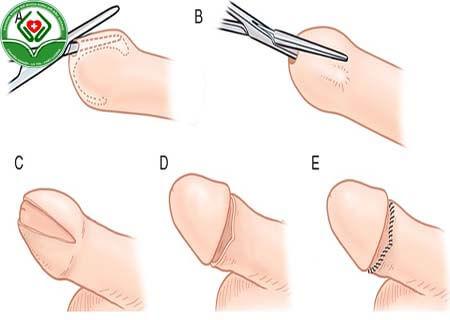 Kỹ thuật cắt bao quy đầu sẽ xác định chi phí cắt