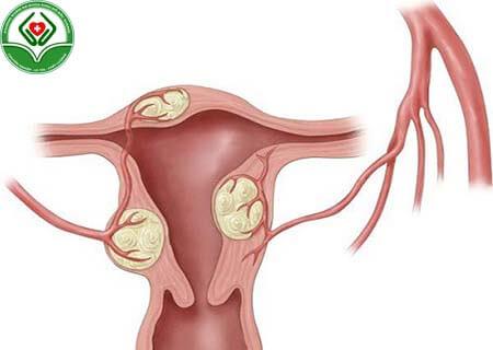 Thế nào là u xơ tử cung