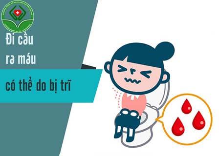 Đi ngoài ra máu dấu hiệu bệnh gì