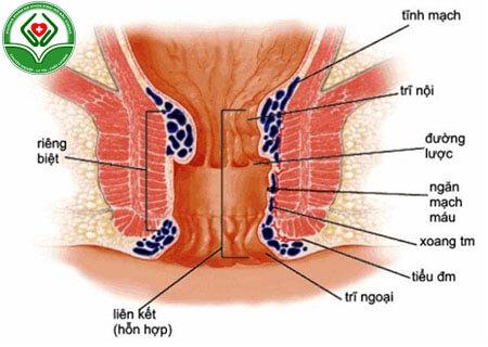 Trĩ nội hình thành do tĩnh mạch bị gập