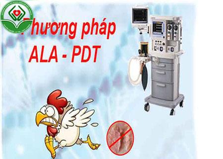 Phương pháp chữa bệnh sùi mào gà tại Kinh Đô