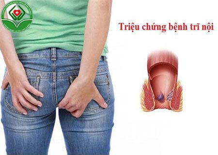 Tổng hợp triệu chứng của bệnh trĩ nội