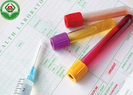 Các loại xét nghiệm nội tiết tố