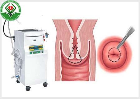 Cách điều trị viêm lộ tuyến bằng RFA