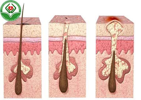 Dấu hiệu viêm lông vùng kín