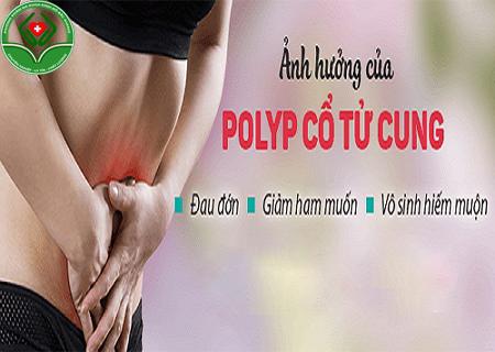 bị polyp cổ tử cung có nguy hiểm không