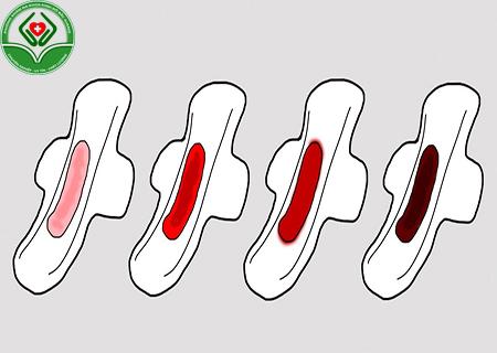 Biểu hiện của viêm buồng trứng