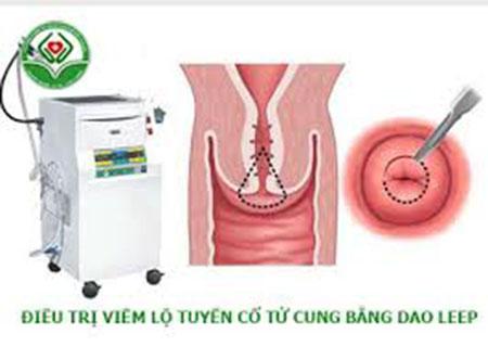 Điều trị viêm lộ tuyến bằng phương pháp Dao Leep