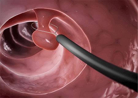 Đốt polyp cổ tử cung có đau không?