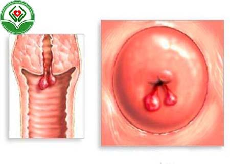 polyp cổ tử cung có lây không
