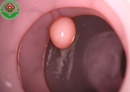 Polyp cổ tử cung gây chảy máu nhiều hay ít?