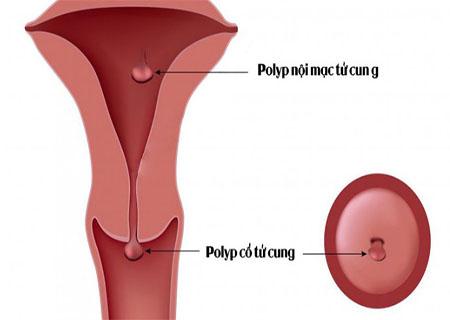 Polyp cổ tử cung sau sinh điều trị như thế nào?