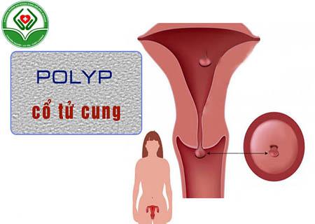 Polyp cổ tử cung
