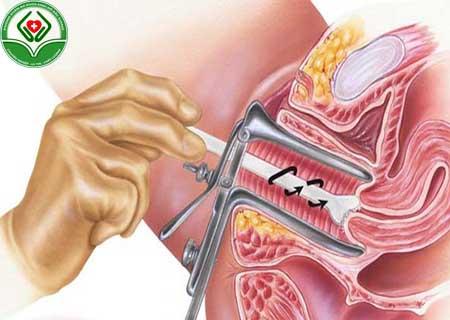 Sinh thiết polyp cổ tử cung có cần thiết không?