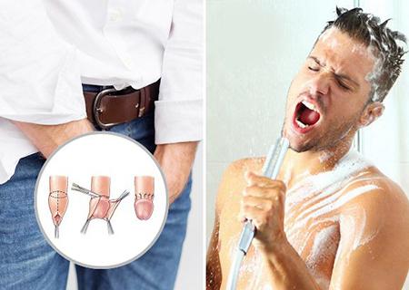 Cắt bao quy đầu bao lâu thì tắm được?