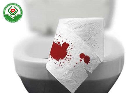 Đi cầu ra máu tươi