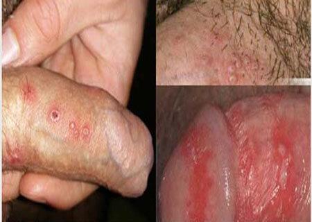Hình ảnh mụn rộp sinh dục nam