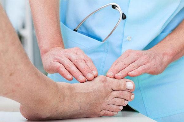 Bệnh gout gây ảnh hưởng đến đời sống sinh hoạt