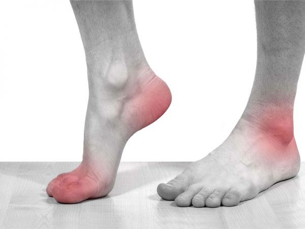 Gout có biểu hiện đau tại các khớp hay vùng ngón chân