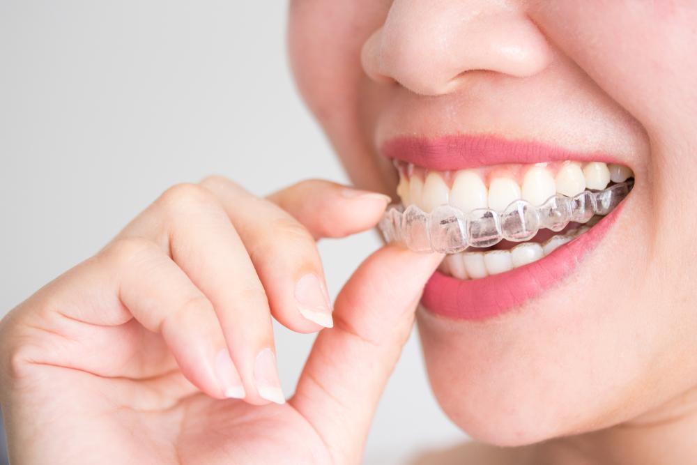 Niềng răng invisalign là gì?